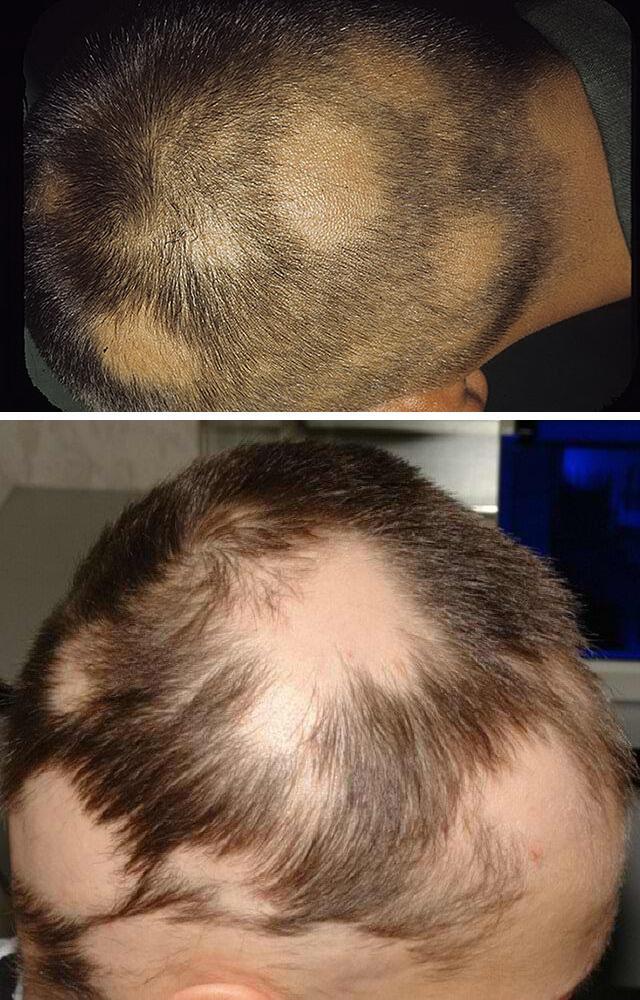 Причины выпадения волос на всём теле