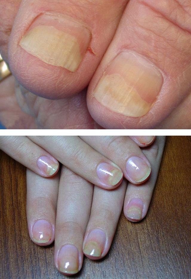 Почему слоятся ногти на руках лечение в домашних условиях 830