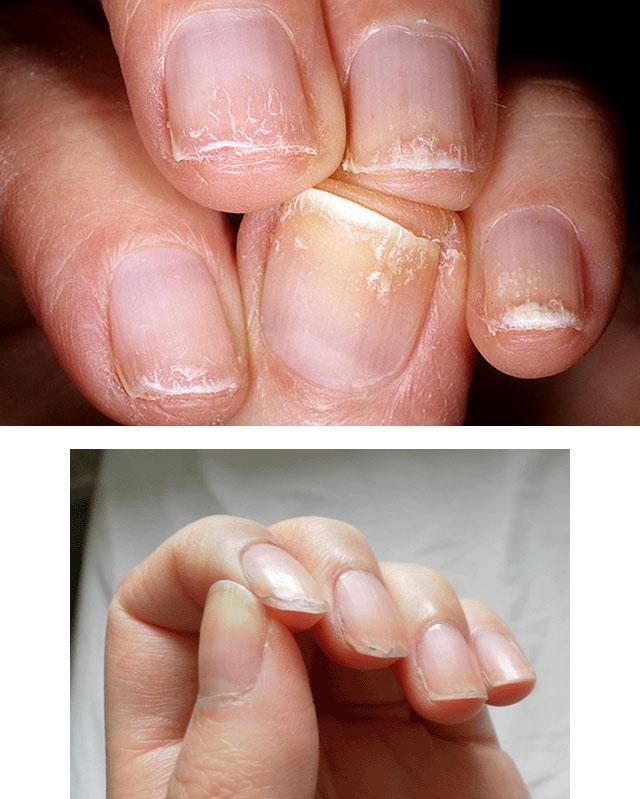Почему слоятся ногти на руках лечение в домашних условиях 851