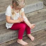 Строфулюс или детская крапивница: опасна ли сыпь для ребенка и как ее вылечить