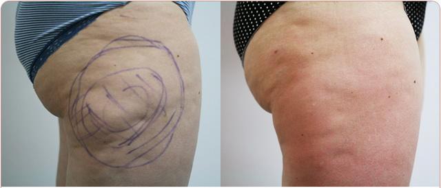Результат до и после инъекционных процедур от целлюлита
