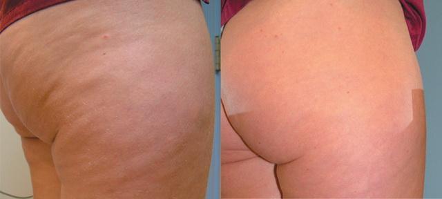 Результат до и после косметических процедур от целлюлита