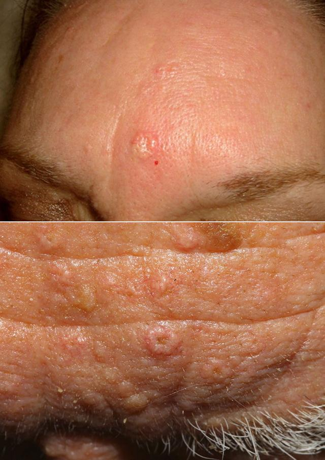 Гиперплазия сальных желез на лбу