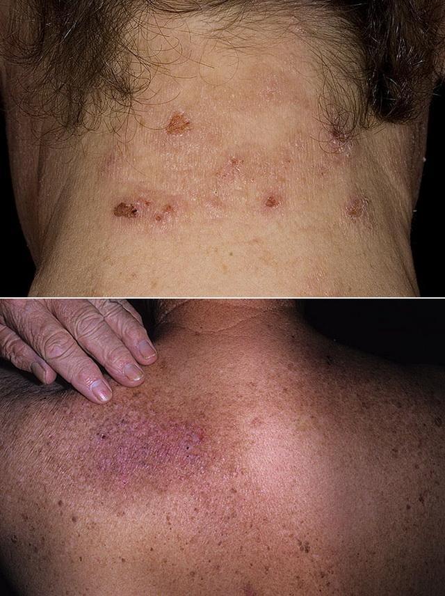 Дермотологическое заболевание нейродерматит