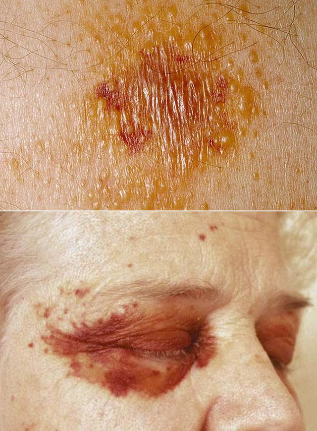 Амилоидоз кожи лехеноидный