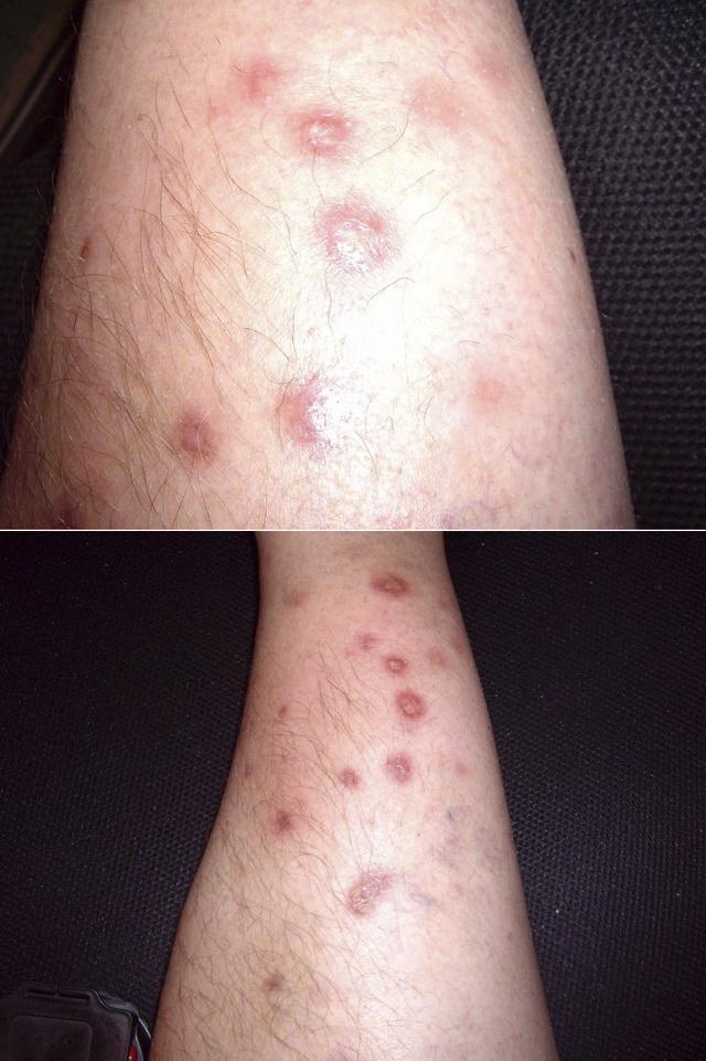 саркоидоз кожи фото и симптомы