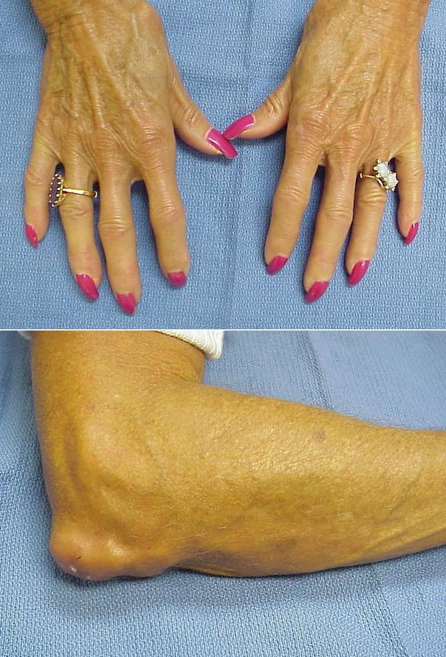 Кальциноз кожи рук