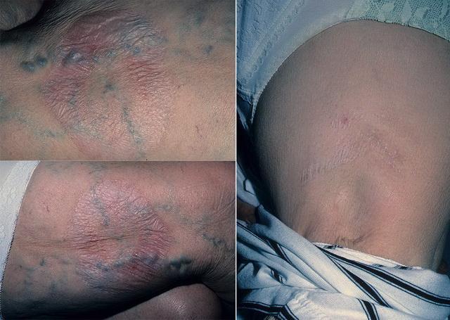 Симптоматика склероатрофии кожных покровов