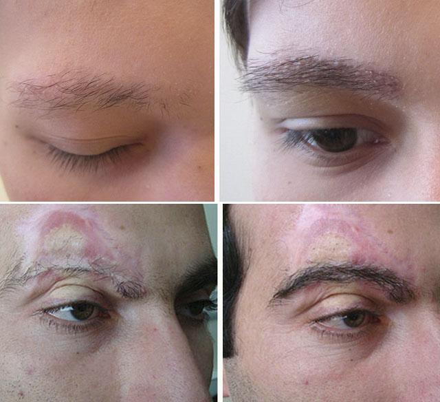 Метод  пересадки бровей Hear Follicle Extraction