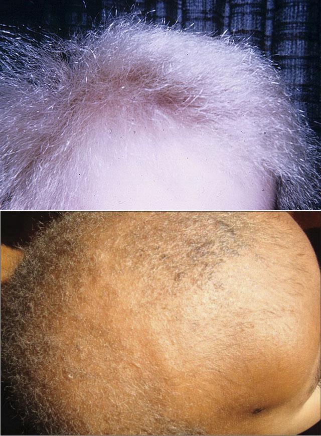 Монилетрикс или веретенообразная атрофия волос
