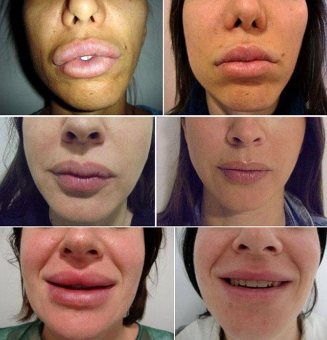 Фото до и после пластической операции по удалению биополимерного геля из губ