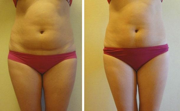 Массаж для похудения живота: виды ручного и аппаратного воздействия, их эффективность