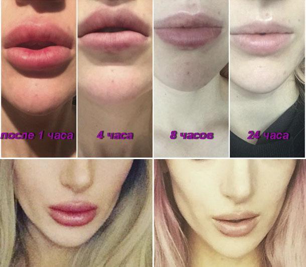 Удаление гиалуроновой кислоты из губ – как бороться с неудачно введенным филлером?