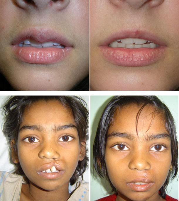 Устранение асимметрии губ