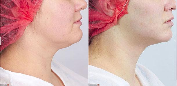Фото до и после введения препарата