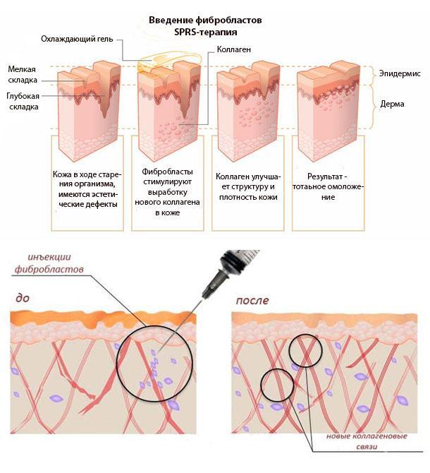 SPRS-терапия: как работает омоложение фибробластами?