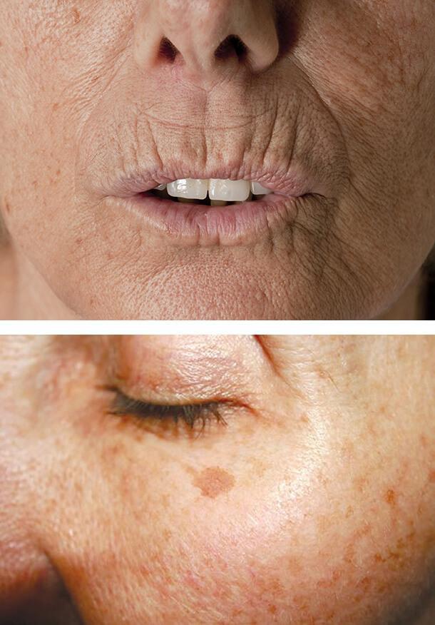 Как курение влияет на кожу? Здравствуйте морщины, тусклый цвет и даже рак!
