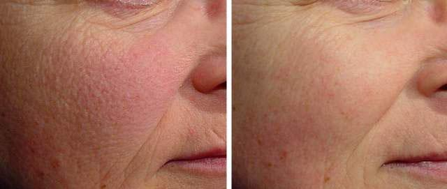 Фото до и после фотоомоложения лица