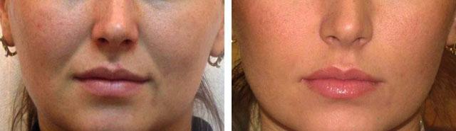 филлер teosyal: фото до и после