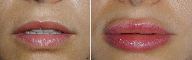 контурная пластика губ коллагеном