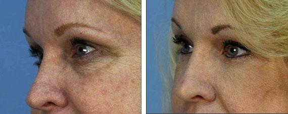 Гиалуроновая кислота от морщин под глазами