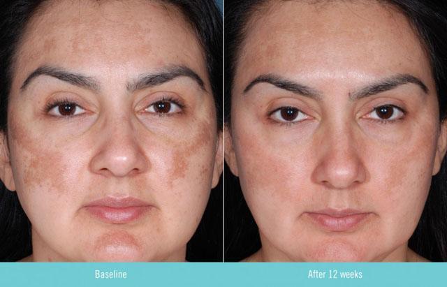 Фитиновый пилинг: до и после 12 недель