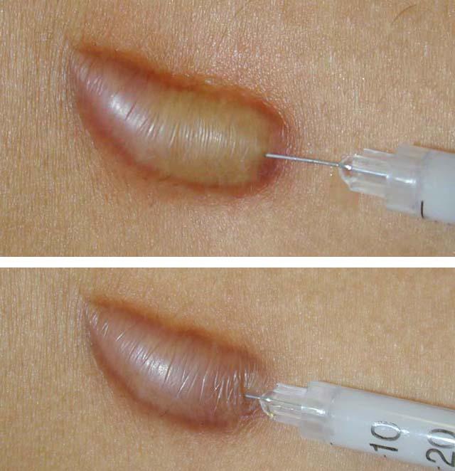 лечение келоидного рубца кортикостероидами