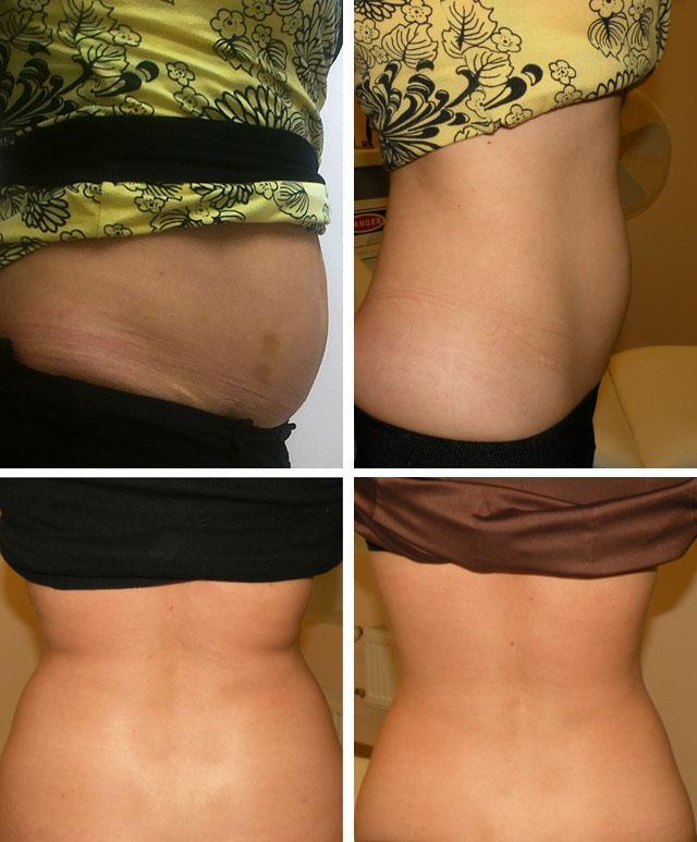 мезотерапия для похудения фото до и после
