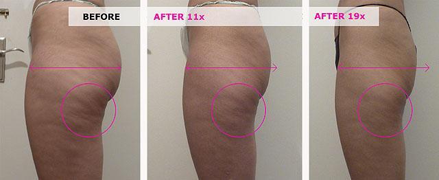 мезотерапия от целлюлита: фото до и после