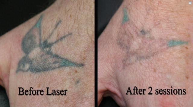 Удаление татуажа лазером (или перманентного макияжа)
