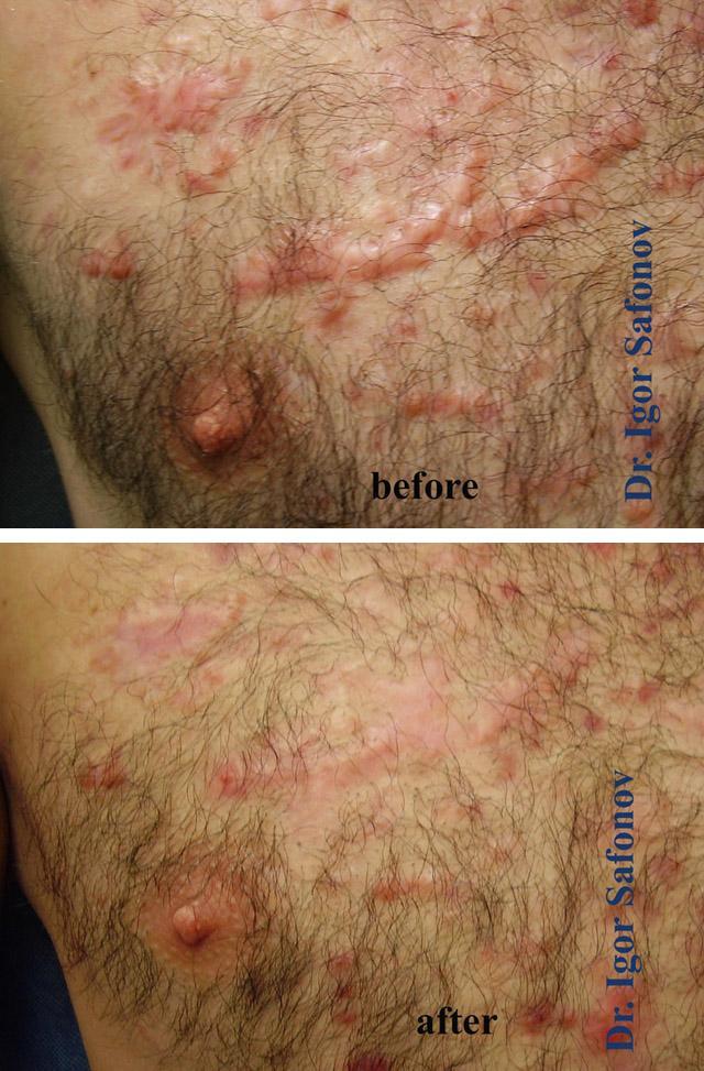 Лучевая терапия для шрамов