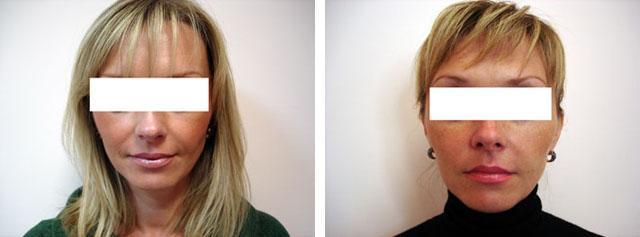 лифтинг лица нитями silhouette lift