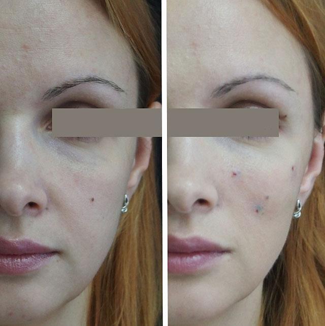 лифтинг средней части лица - сразу после опреции
