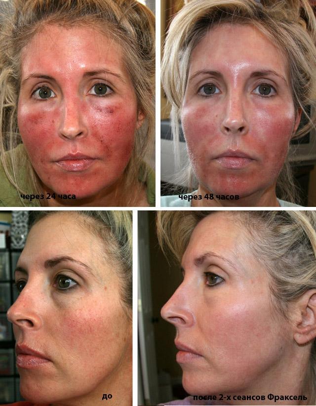 Аллергия на фотоомоложение