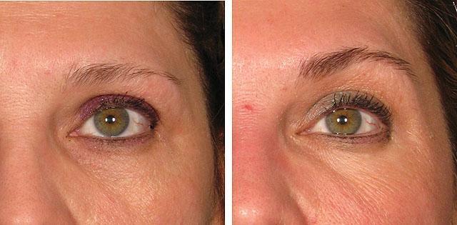 ультразвуковая подтяжка лба и области вокруг глаз