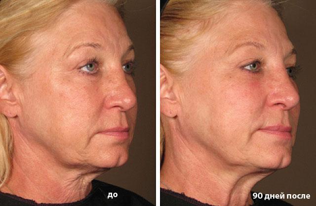 фото до и после ультразвукового лифтинга лица