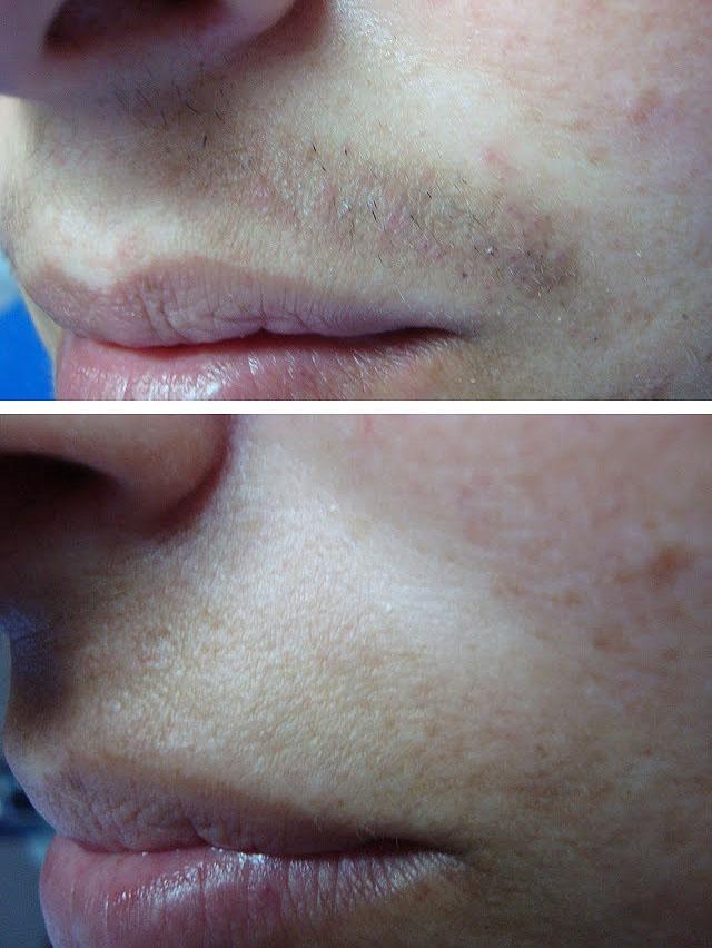 фото электроэпиляции верхней губы