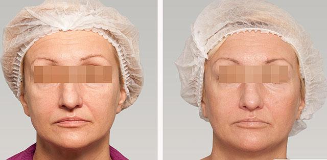 редермализация кожи лица