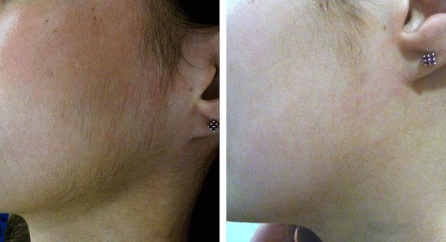 удаление волос на лице методом фотоэпиляции