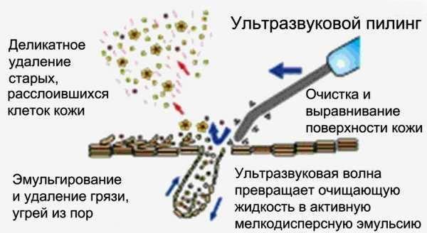 Действие УЗ аппарата Gezatone KUS-2K
