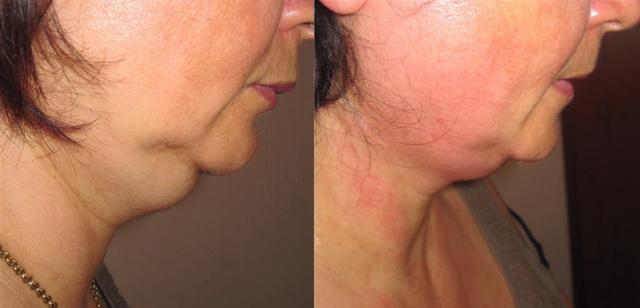 Фото до и после дезоксихолата натрия