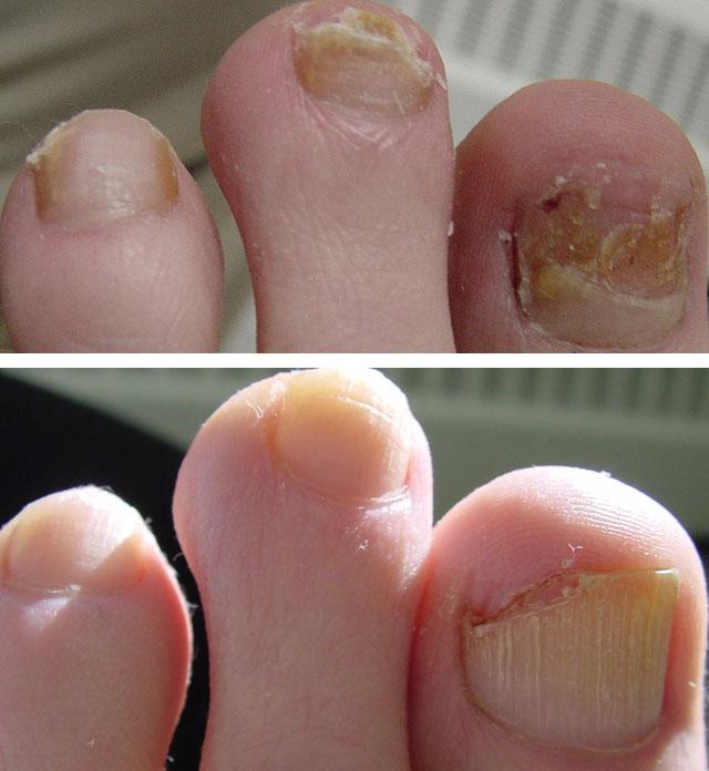 лечение грибка ногтей ног лазером