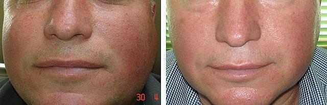 Лазерная фотокоагуляция сосудов на лице