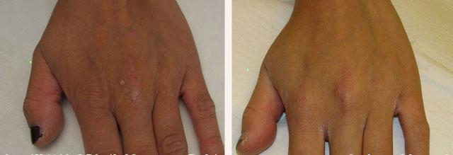 обработка лазером папилломы на руке
