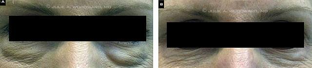 1. Видимые уплотнения после слишком поверхностного введения филлера.  2. Результат после терапии гиалуронидазы