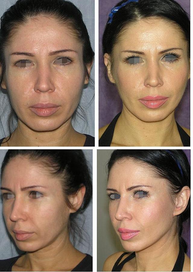 до и после круговой подтяжки лица