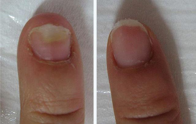 Уколы от грибка ногтей на ногах
