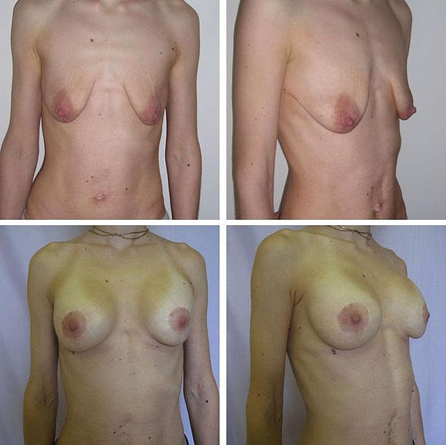 аугментационная мастопексия