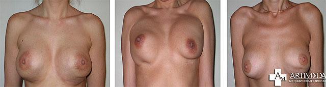 Усиление деформации в виде двойной складки при напряжении мышц грудной стенки