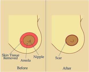 Разрез при периареолярной мастопексии
